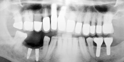 Abformung von Implantaten mit extremer Neigung