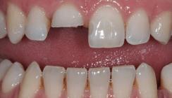 Adhäsive Techniken in der Zahnerhaltung
