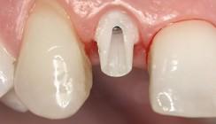 Langzeitstabilität und Ästhetik mit Implantatversorgung