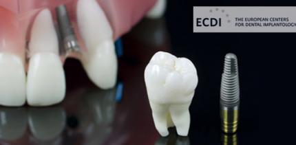 Welchen Einfluss haben Zahnimplantate auf die Lebensqualität?