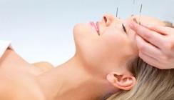 Akupunktur verändert Schmerzverarbeitung im Gehirn