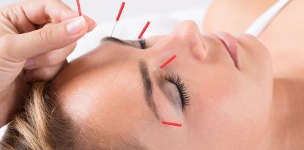 Mit Akupunktur gegen die Zahnarztangst