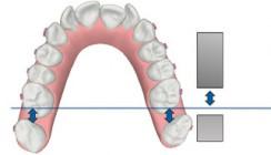 Aligner-Orthodontie in kombiniert kieferorthopädisch- kiefergesichtschirurgischen Konzepten