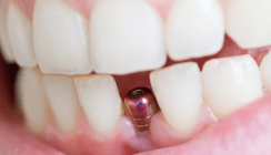 Wenn Zahnersatz Allergien auslöst – Was gilt es zu beachten?