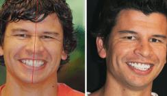 Das gealterte Lächeln: Funktionelle und ästhetische Erwägungen