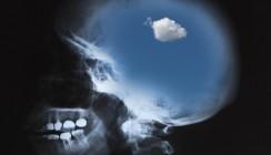 Alzheimer durch schlechte Zähne
