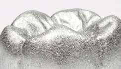 Füllungstherapie: Amalgam doch überlegen?