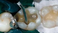 Amalgamersatz im Seitenzahnbereich mit einer Ormocer-Kombination