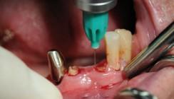 Intraligamentäre Anästhesie bei anatomisch eng begrenzten dentoalveolären Eingriffen