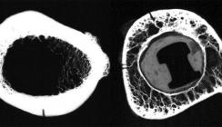 Periimplantitis: Analyse und Hinweise zur Implantatauswahl