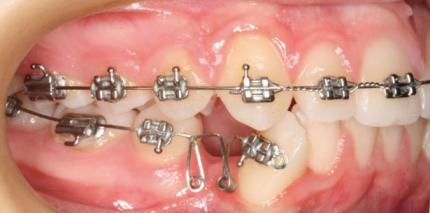 Die Steuerung kieferorthopädischer Zahnbewegung