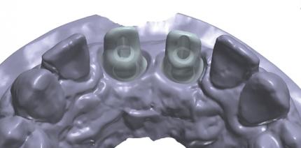 Ein komplexer Fall – gelöst mit CAD/CAM-Technologie