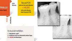 Adjuvante minimalinvasive Parodontitis- und Periimplantitistherapie