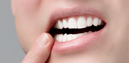 Aphthen: Wie man gegen die kleinen Bläschen im Mund vorgehen kann