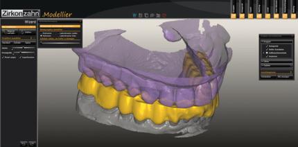 Apnoeschienen digital herstellen mittels CAD/CAM