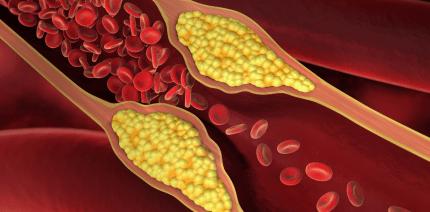 Parodontitis: Ein Risikofaktor für Arterienverkalkung