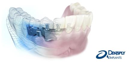 Individuelle Implantatversorgung für jeden Patienten