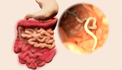 Über den Mund: Ärzte befreien Patienten von 1,90 m langem Bandwurm