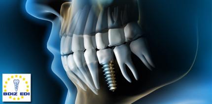 """Wo steht das Implantat """"richtig""""?"""
