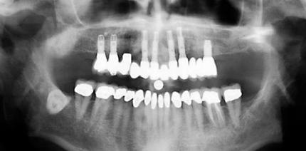 Grundlegende Parameter der Behandlungsplanung beim zahnlosen Oberkiefer