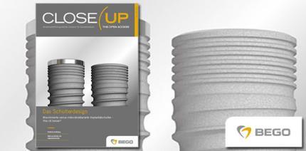 BEGO Implant Systems veröffentlicht neue Ausgabe von Close Up