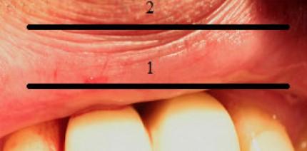 Ultraschall in der Implantologie