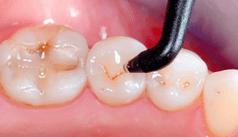 Diagnostik in der Karies- und Parodontitisprophylaxe