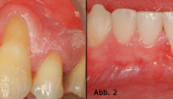 Plastisch-ästhetische Parodontaltherapie