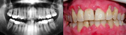 Er:YAG-Laser in parodontalem Grenzbereich