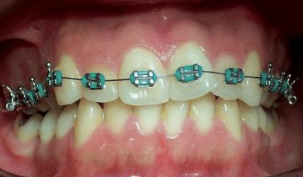 Effizienter Einsatz lingualer Orthodontie bei rotierten Zähnen
