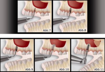 Eine minimalinvasive Methode zur Sinusbodenelevation