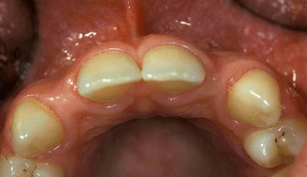 Eine implantologische Herausforderung