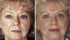 Das Altern – Wandlungen der Patientenansprüche