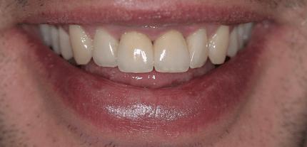 Chronische hyperplastische Gingivitis