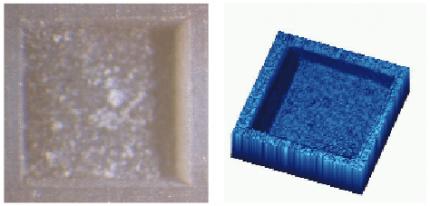 Ultrakurzpulslaser-Technologie in der Zahnheilkunde