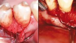 Fehlervermeidung in der Parodontalchirurgie