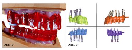 Implantatprothetik - conditiones sine quibus non