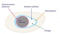 Die chemische Wurzelkanalaufbereitung