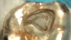 Endodontie beim älteren Patienten – Besonderheiten
