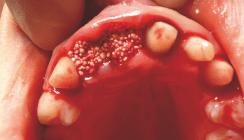 Individuelle Alveolarkammanatomie auf unkomplizierte Weise erhalten