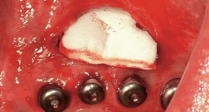 Vestibulumplastik unter Einsatz einer Kollagenmatrix