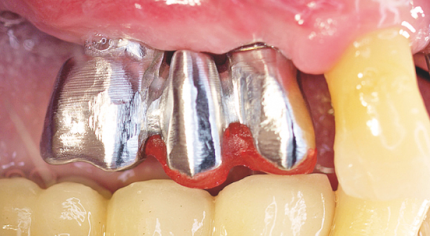 Sofortversorgung auf Implantate im Oberkiefer-Seitenzahnbereich