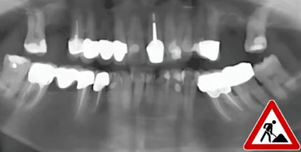 Biologische Zahnheilkunde