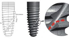 Bionische Anforderungen an das Implantatdesign moderner Systeme
