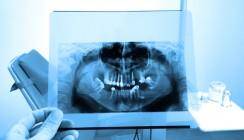 Bisphosphonat: Risiken abwägen und Patienten aufklären