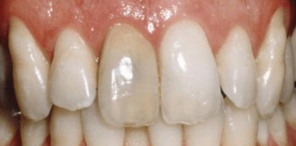 Bleaching devitaler Zähne – Zusatzleistung Endodontie