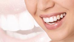 Bleaching-Behandlungen fördern Umsatz und Image