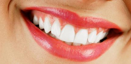 Strahlende Zähne – immer gefragt