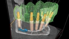 Navigierte minimalinvasive Implantationen für den zahnlosen Kiefer