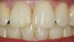 Endodontie im demografischen Wandel